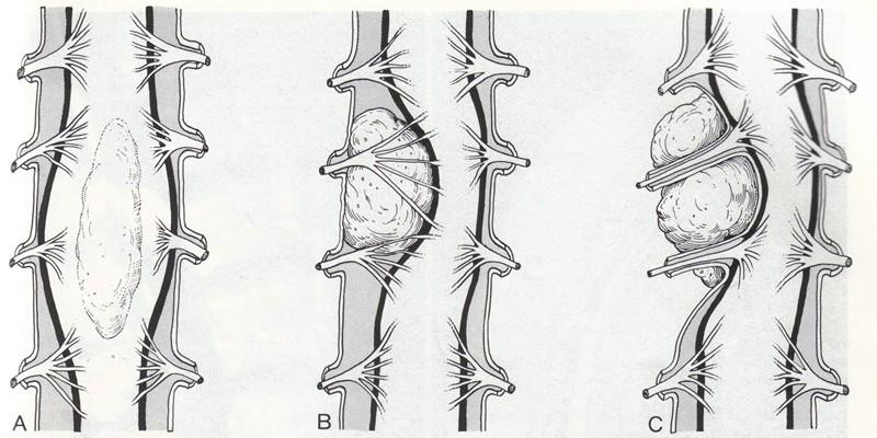 Периневральная киста на уровне s2 позвонка