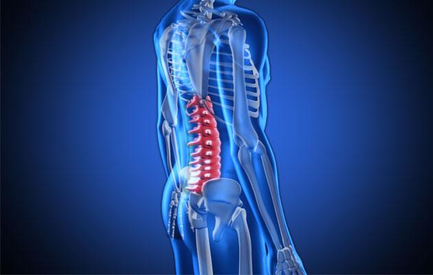 Болезнь Форестье причины симптомы и лечение