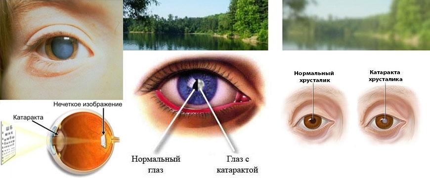 Двоение в глазах при остеохондрозе шейного отдела позвоночника причины и тактика лечения