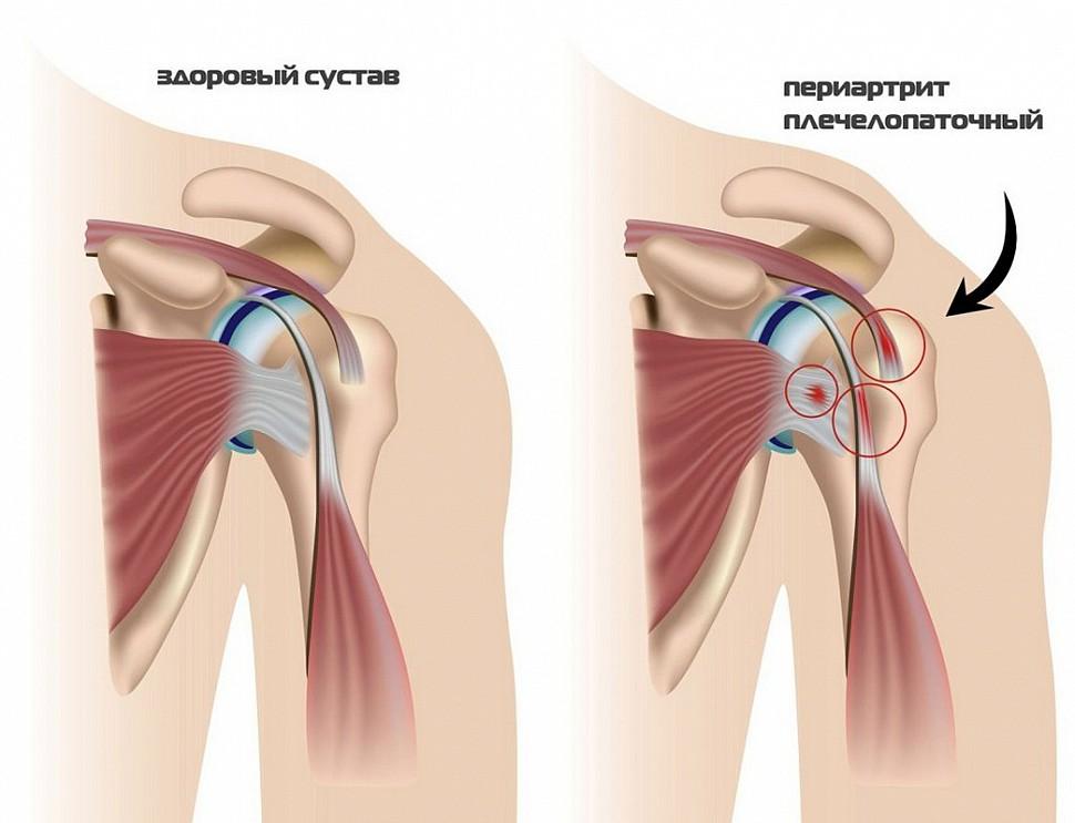 Боль в лопатке при повороте шеи