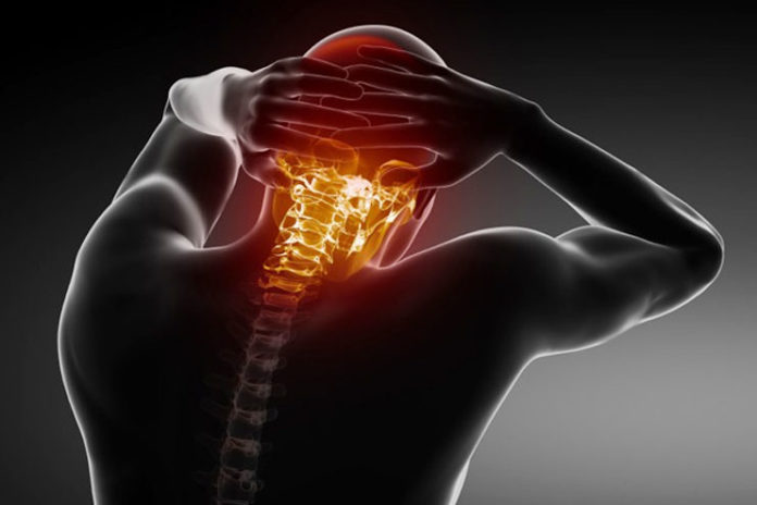 Невралгия шейного отдела позвоночника симптомы и лечение