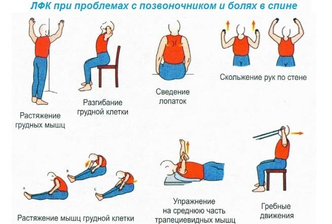 Спондилоартроз пояснично крестцового отдела позвоночника гимнастика