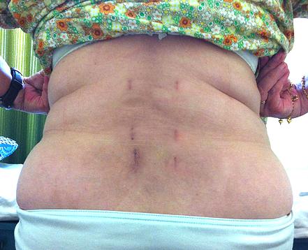 Диам в позвоночнике после операции