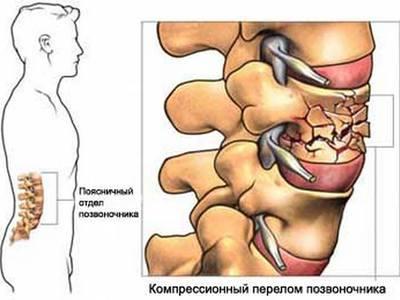 Лучевая терапия при мтс в позвоночнике