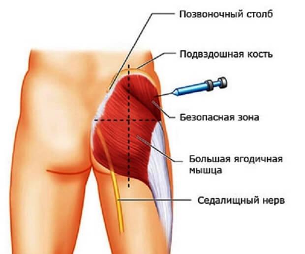 Изображение - Сколько колоть диклофенак при болях в суставах delat-vnutrimyshechno-yagodicu8