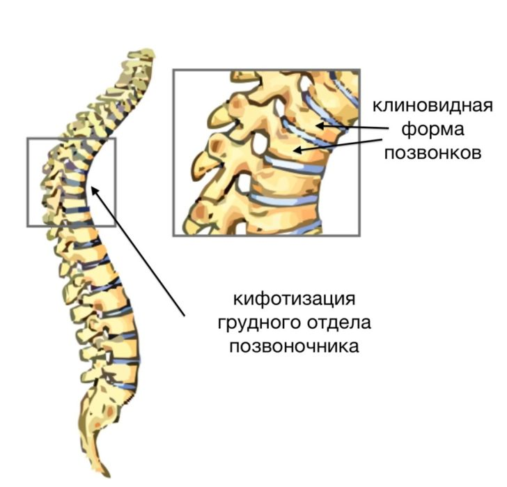Клиновидная деформация позвонков (тела Th7 и Th12)
