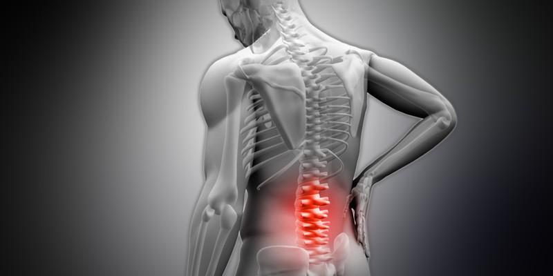 Какой врач лечит остеосклероз позвоночника
