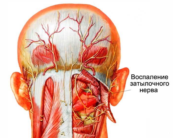 Обезболивающие при невралгии шейного отдела