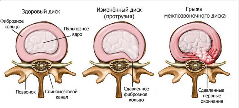 Лечение протрузии грудного отдела позвоночника ЛФК лекарства