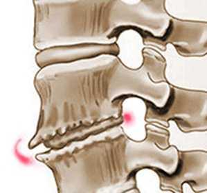 Остеохондроз шейного отдела позвоночника - симптомы и лечение шейного остеохондроза в домашних условиях
