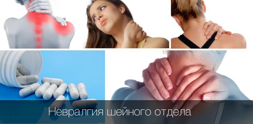 Невралгия шейного отдела позвоночника причины симптомы и лечение
