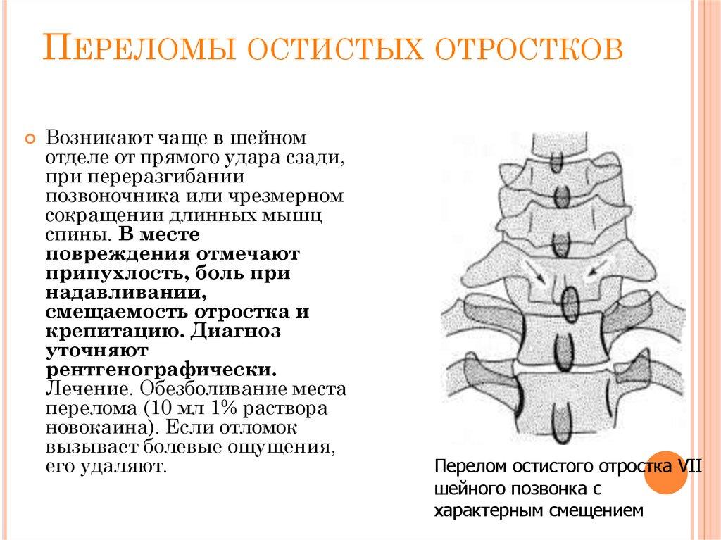 Лечение при переломе остистого и поперечного отростка позвоночника