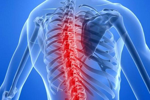 Спинная сухотка - что это такое, симптомы и лечение сухотки спинного мозга