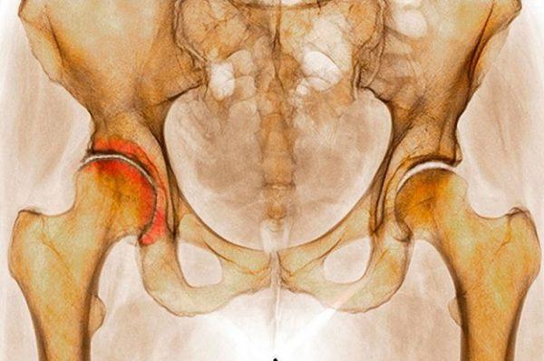 Артроз крестцово-подвздошных сочленений (пояснично-крестцовый): лечение