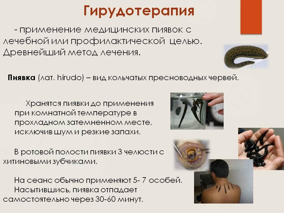 Гирудотерапия польза и вред при грыже позвоночника