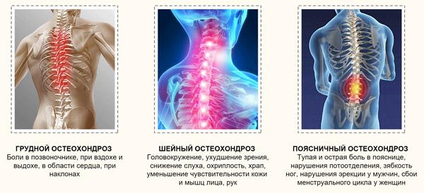 Аппаратное лечение остеохондроза шейного отдела прибором Алмаг
