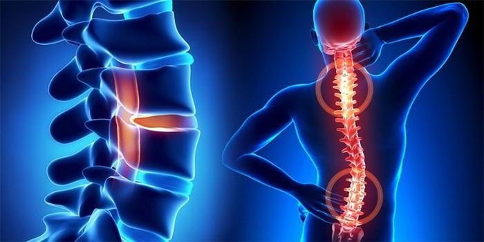 Что такое серонегативный спондилоартрит - 5 методов лечения