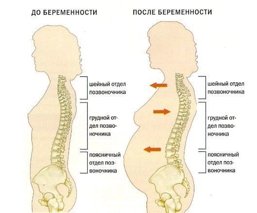 Сколиоз 3 степени и беременность