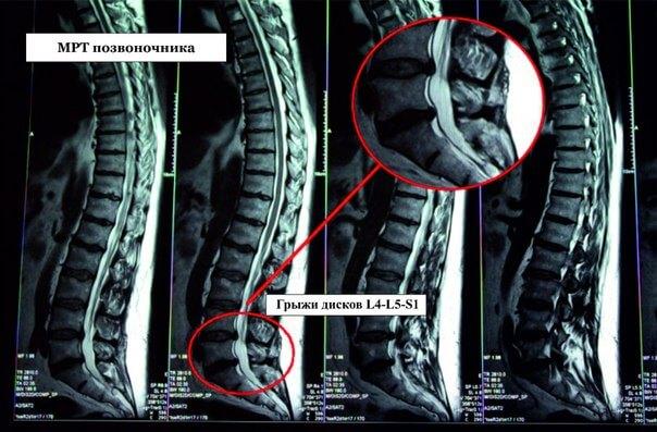 Может ли рентген показать грыжу позвоночника