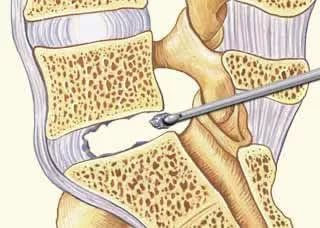 Микродискэктомия поясничного отдела позвоночника - реабилитация и ограничения