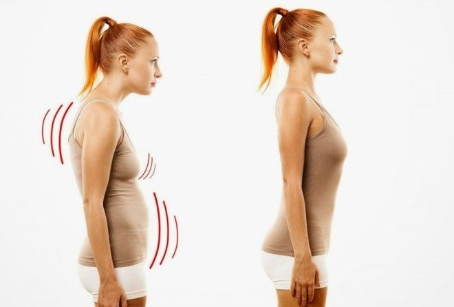 Лечение гиперкифоза грудного отдела позвоночника. Гиперкифоз грудного отдела позвоночника
