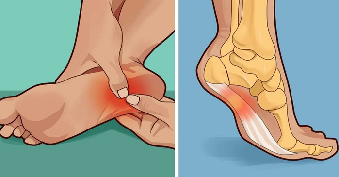 Сильная боль в пятке при ходьбе