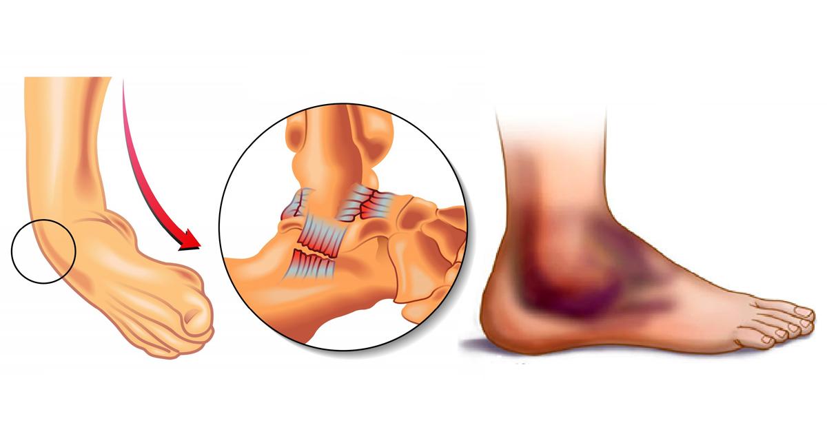 Разрыв связок голеностопного сустава: первая помощь и лечение