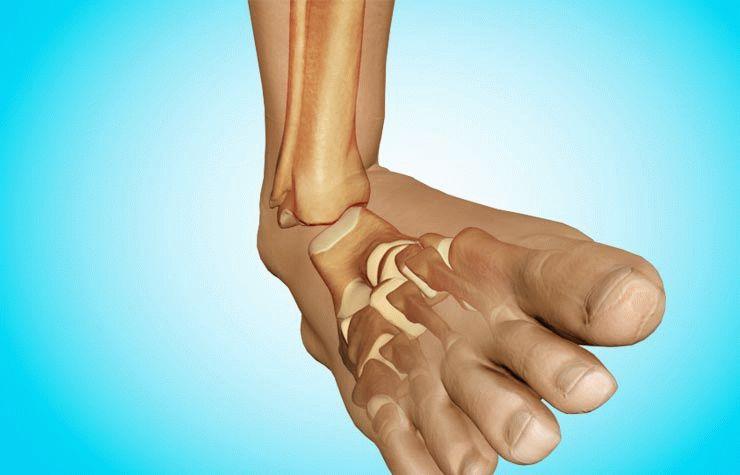 Лечение вывиха стопы: что делать и как лечить вывих голеностопного сустава