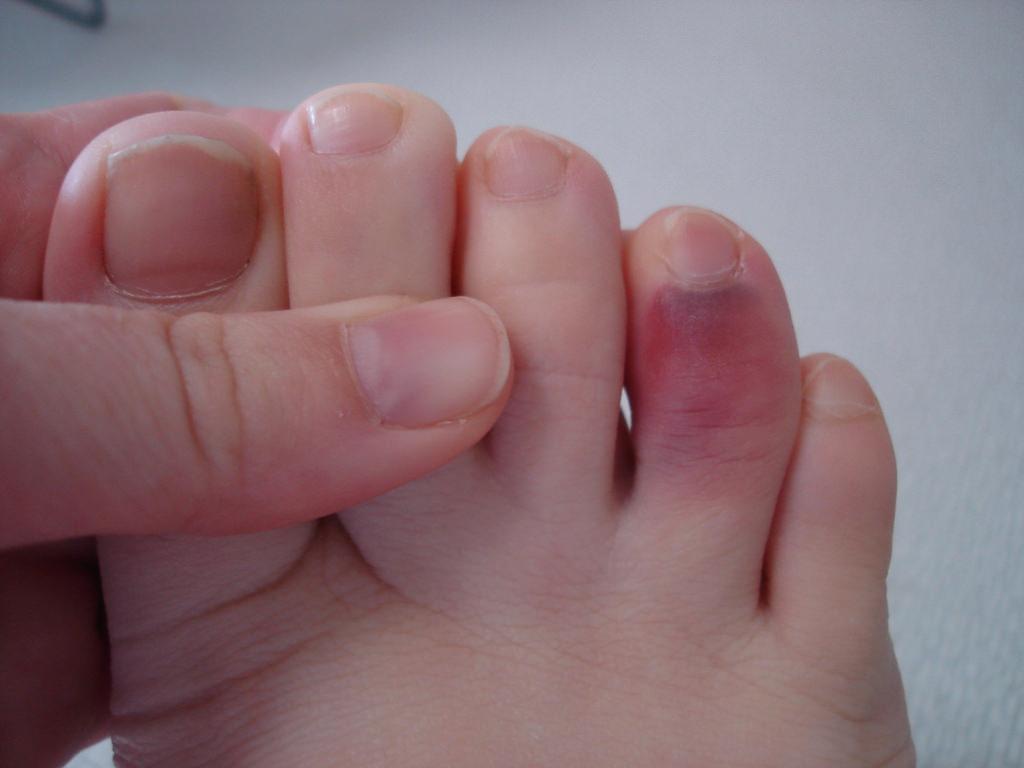 Как определить перелом или ушиб пальца на руке