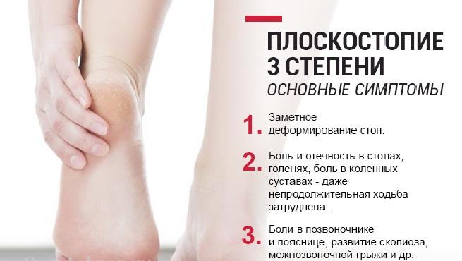 Плоскостопие 3 степени как лечить