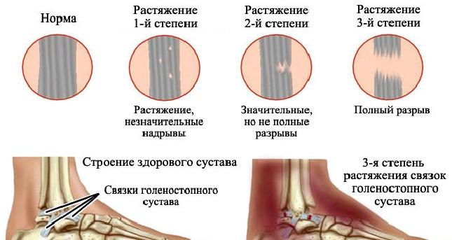 Полный разрыв связок голеностопного сустава