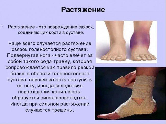 Растяжение мышцы голени симптомы лечение