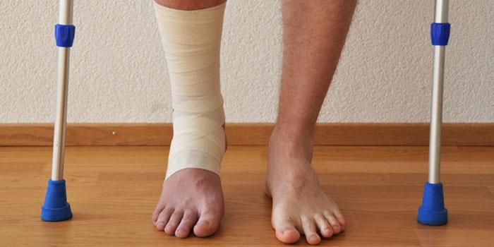 Изображение - После перелома ноги болит сустав 5796376-6