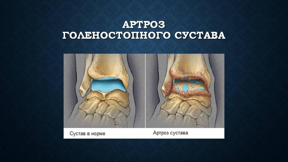 Изображение - Голеностоп сустав травма Slide4