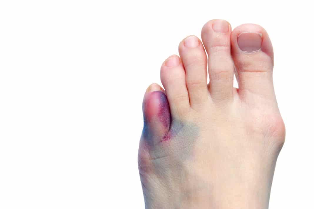 Какие признаки ушибов пальцев ноги картинки