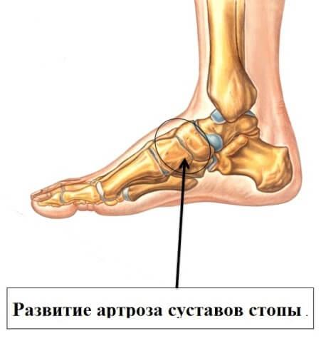 Артроз стопы симптомы и лечение как лечить остеоартроз ног в домашних условиях