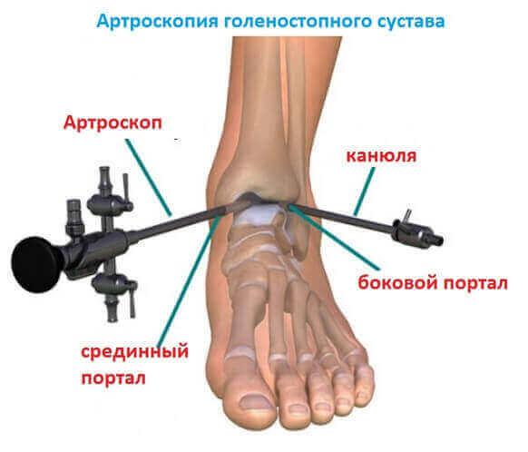 Изображение - Голеностоп сустав травма bfe65ad66aa235fc28e67c6432374c68
