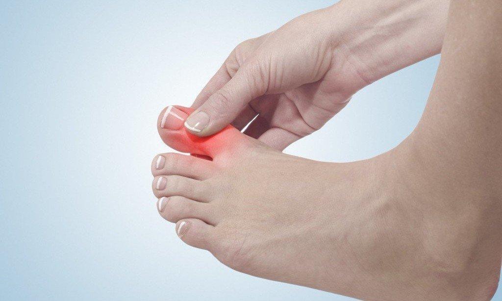 Опухла косточка на ноге и болит: как лечить, что делать
