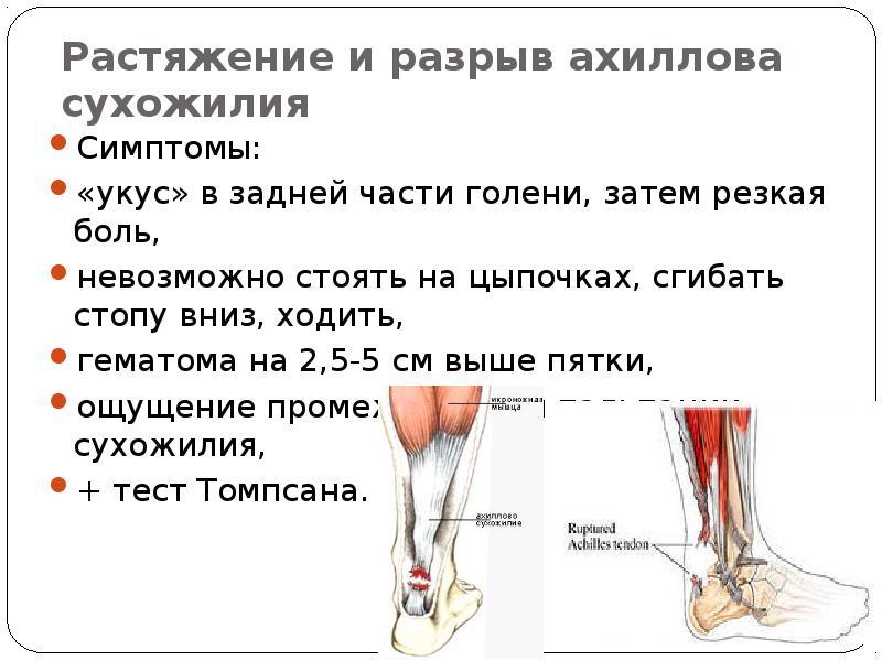 Изображение - Ортез средней жесткости на голеностопный сустав img50