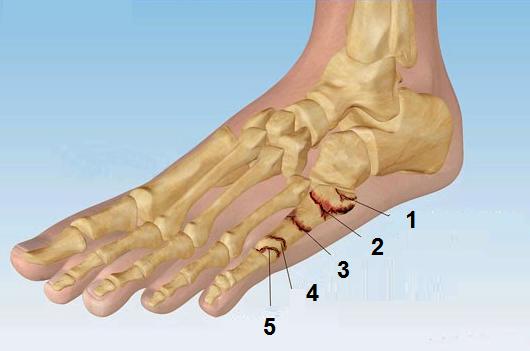 Перелом 5 плюсневой кости стопы сколько заживает (восстанавливается)?