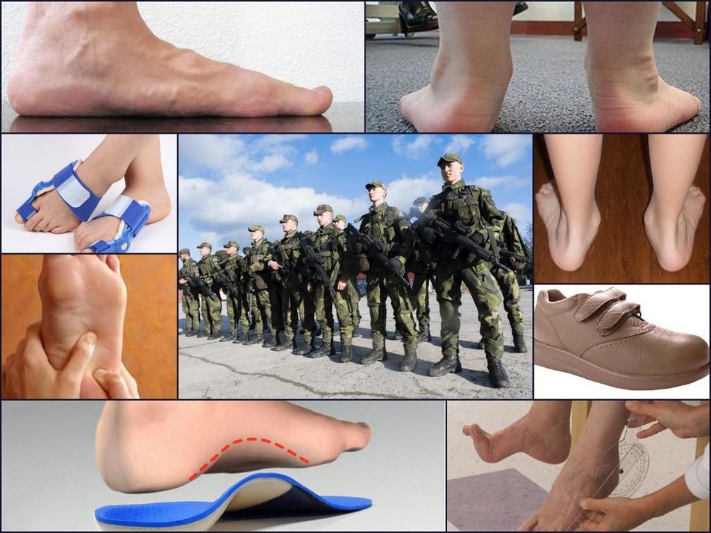 Берут ли в армию с плоскостопием различных степеней и форм
