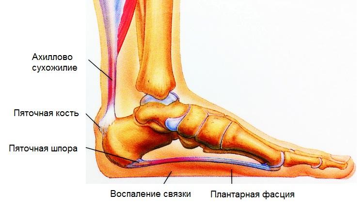 Причины и лечение боли в пятке при ходьбе