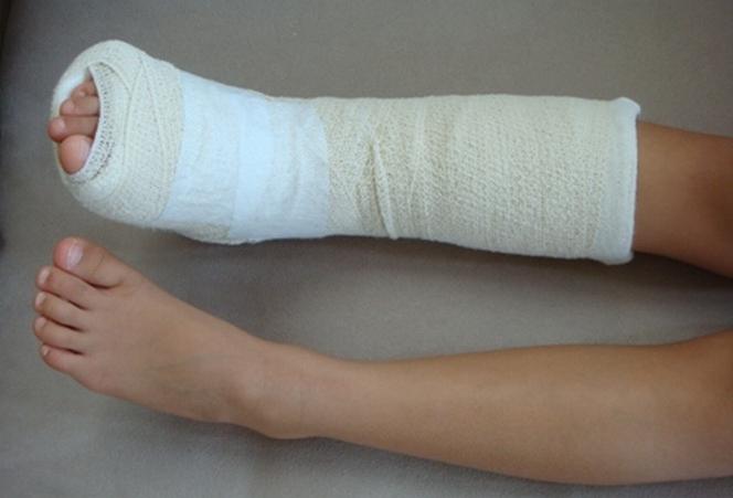 Сколько ходить в гипсе при переломе щиколотки ноги с внутренней и внешней стороны