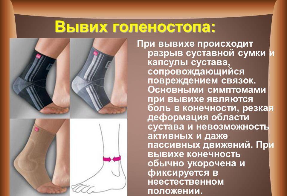 Изображение - Голеностоп сустав травма shema-1