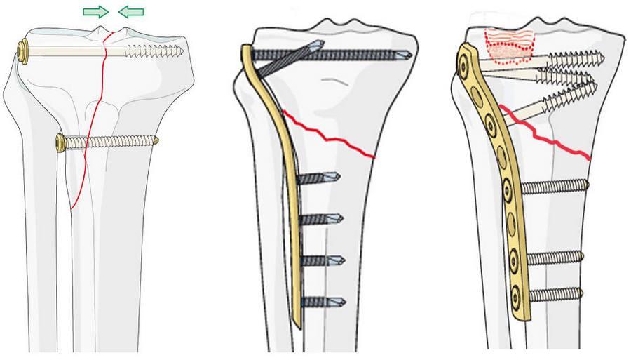 Перелом голени со смещением операция пластина реабилитация