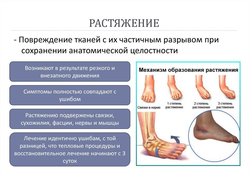 Изображение - Растяжение голеностопного сустава гипс slide-14