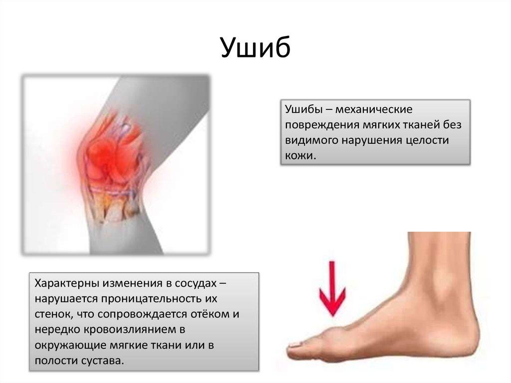 Ушиб голеностопного сустава лечение - Ортопед.info