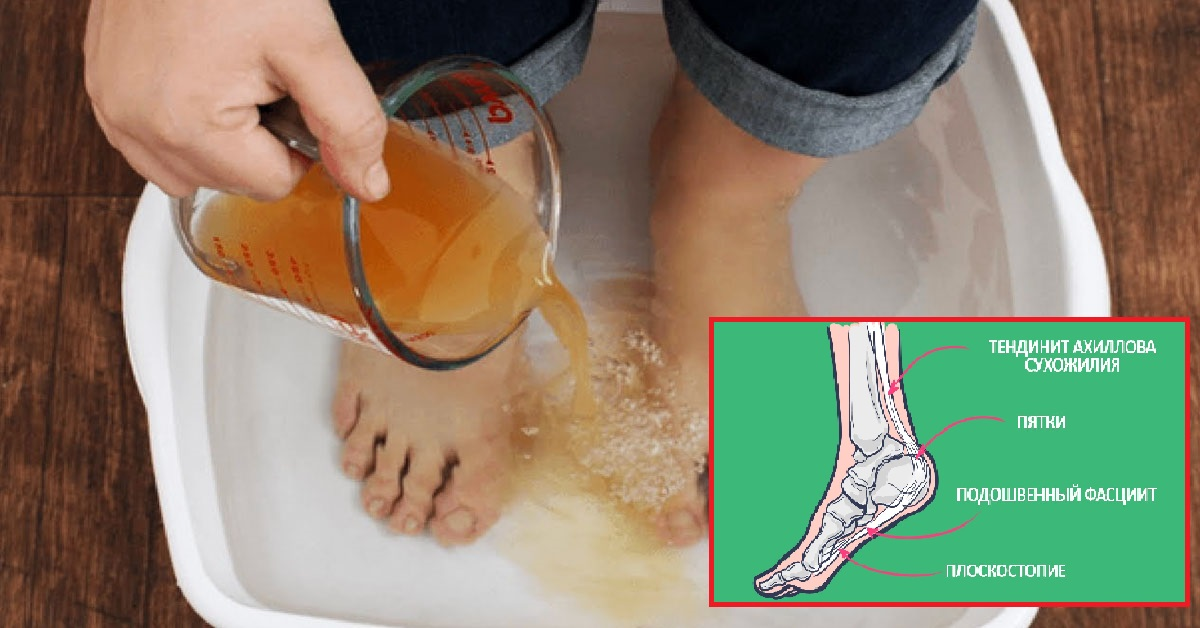 Боли в пятках ног чем лечить