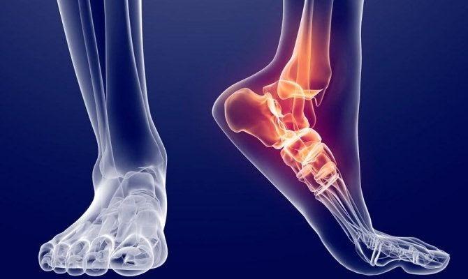 Растяжение мышц и связок голени симптомы и лечение
