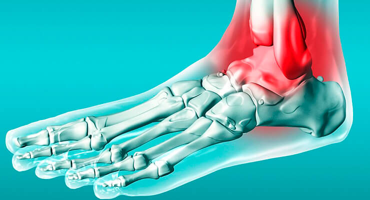 Когда можно наступать на ногу, если у вас перелом лодыжки без смещения?